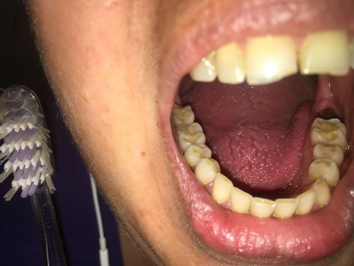 … Dentist